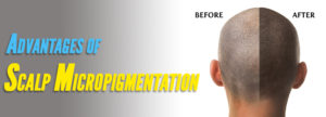 advantage-of-scalp-micropigmentation