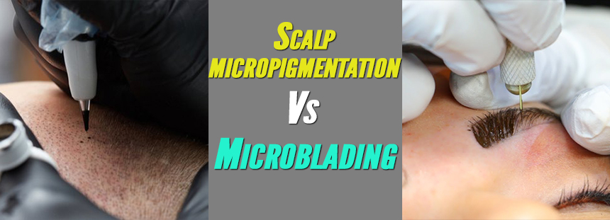 scalp-micropigmentation-or-microblading